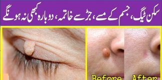 How to Remove Skin Tags Painlessly with Natural Ingredients