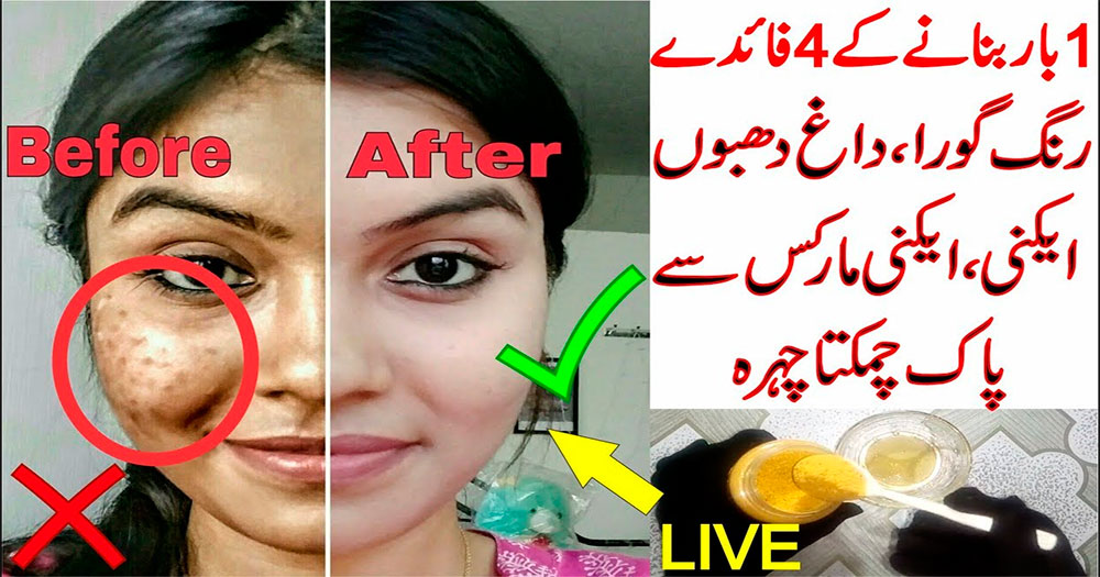 Remove pimples fast naturally