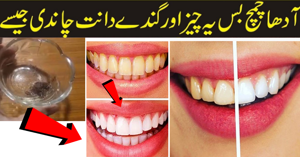 How To Remove Yellow Spots On Teeth With This Remedy