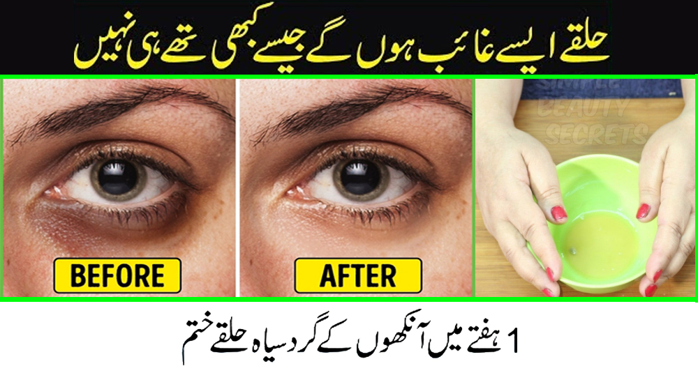 How to Remove Dark Circles Permanently with Homemade Eye Serum