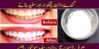 How to Get White Teeth Permanently with this Home Remedy