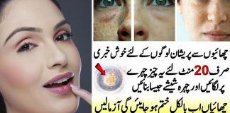 Anti-Freckle Home Remedy to Get Rid of Freckles Fast
