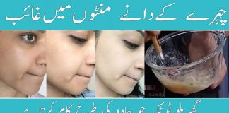 How to Reduce Acne Scars & Get Glowing Skin   Home Remedy